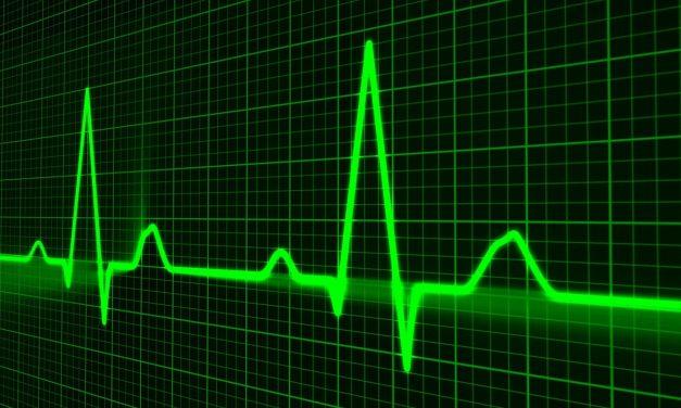 Zuverlässiges EKG durch die neue Apple Watch? Kardiologen bewerten EKG-Funktionen